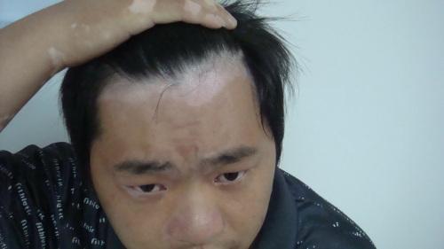 北京治疗白癜风专科医院:男性白癜风怎么调节压力